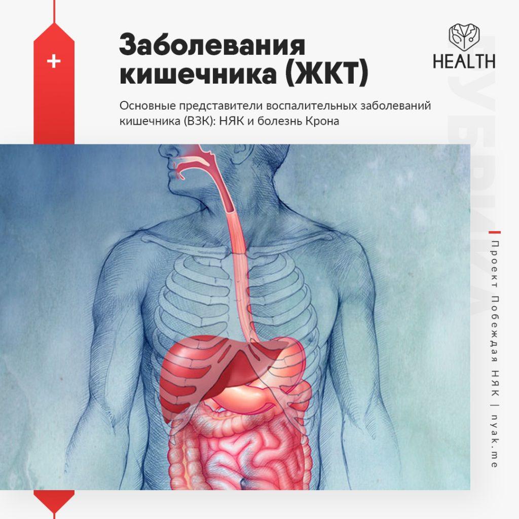 Воспалительные заболевания кишечника (ЖКТ)