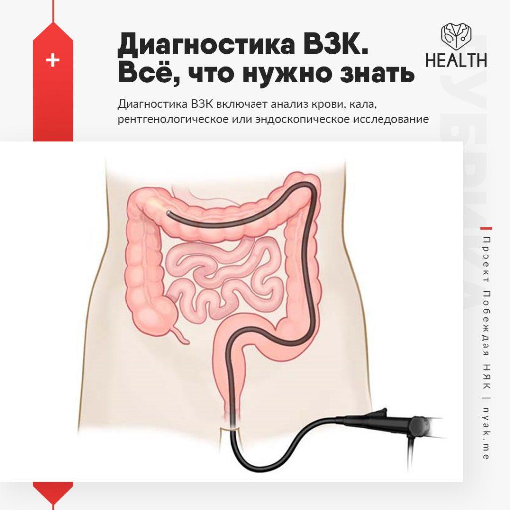 Диагностика ВЗК