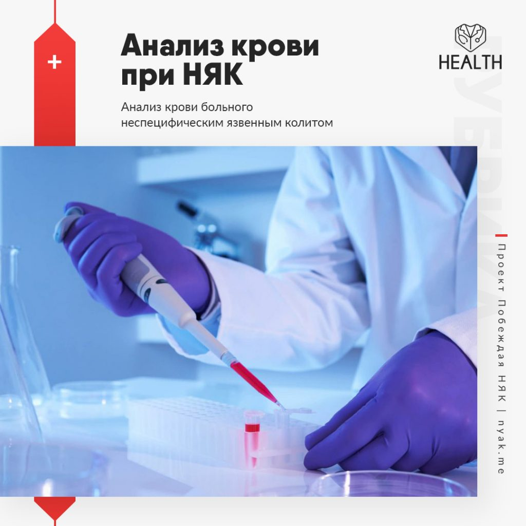 Анализ крови при НЯК