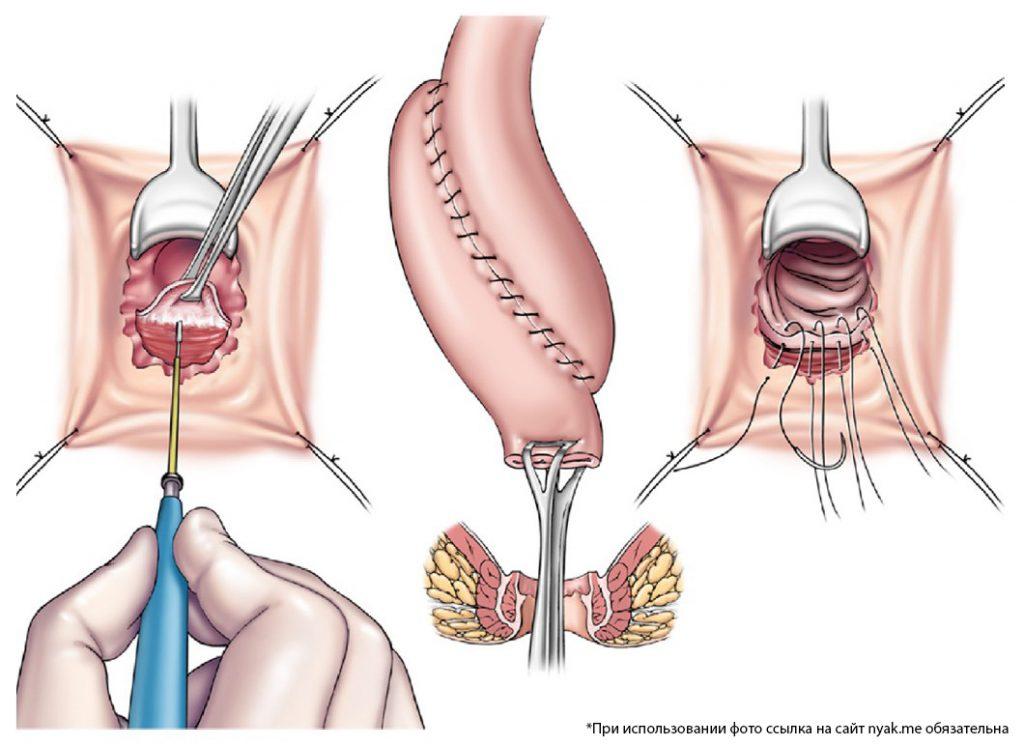 Мукосэктомия с АПАМ (анастомоз подвздошно-анального мешка) ручной работы