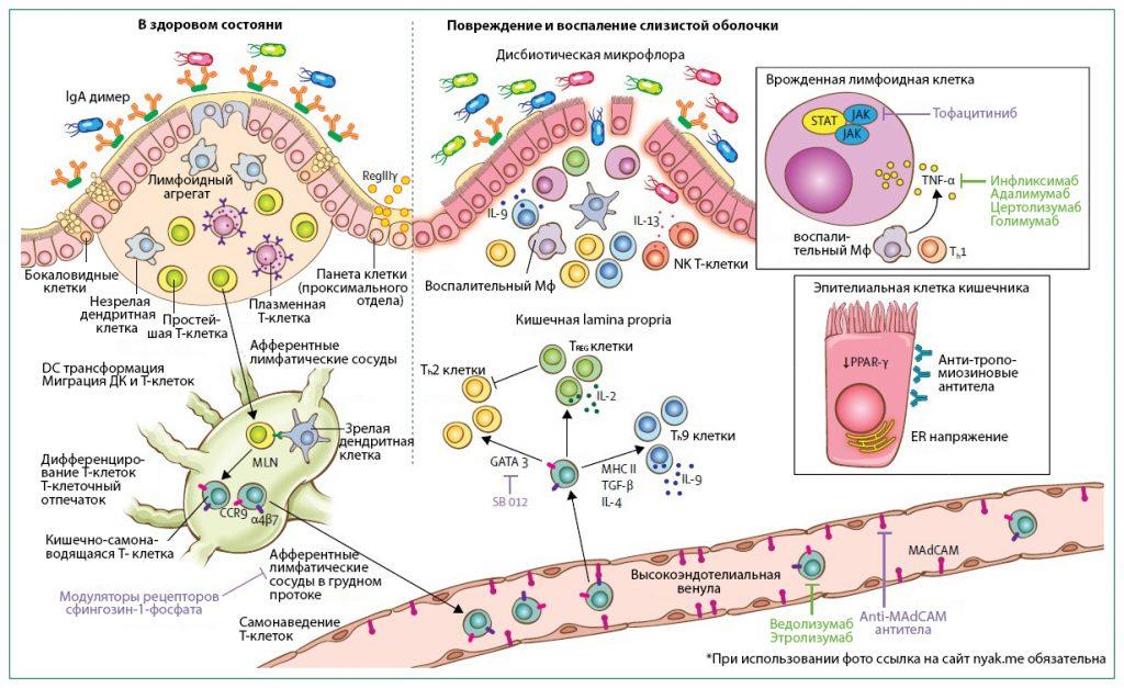 Обзор иммунной системы кишечника в здоровом состоянии и при неспецифическом язвенном колите