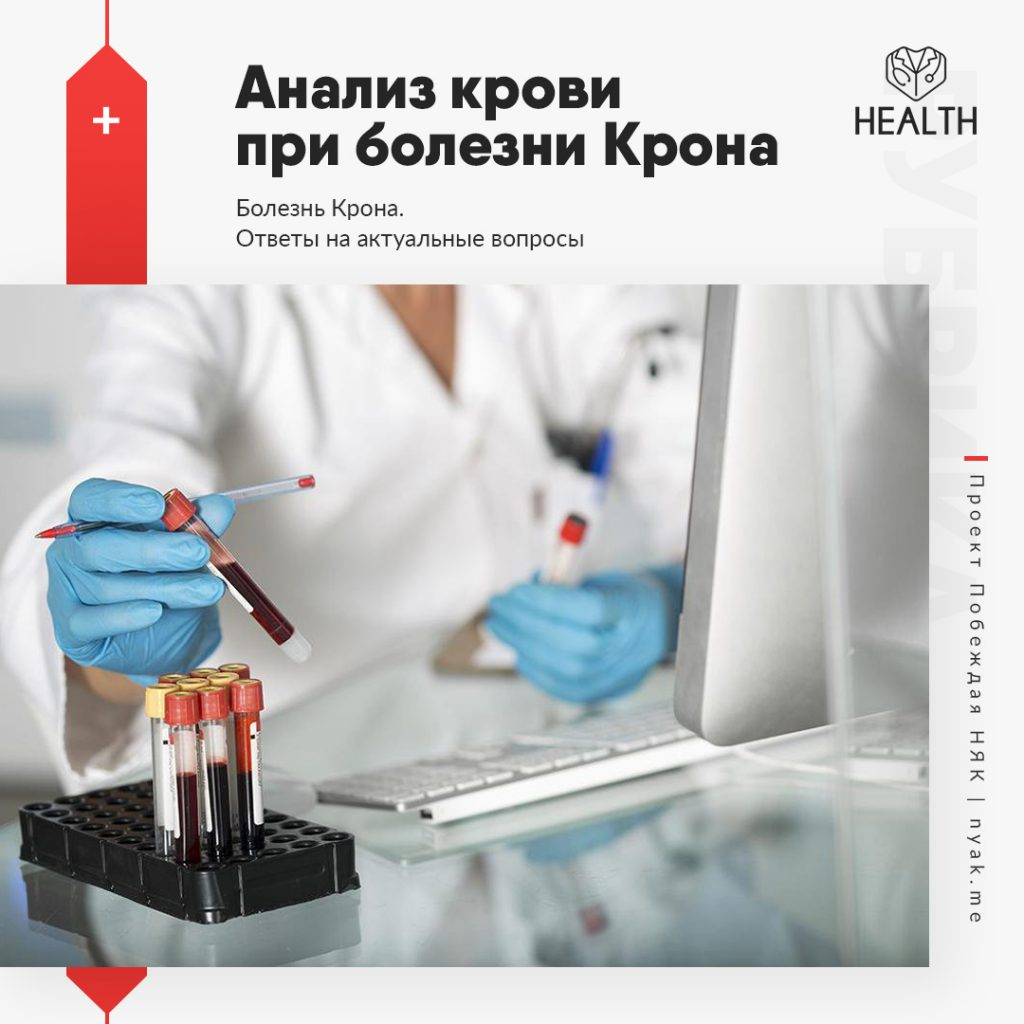 Анализ крови при болезни Крона