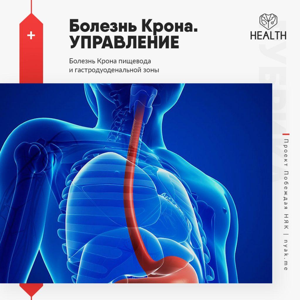 Болезнь Крона. Управление. Болезнь Крона пищевода и гастродуоденальной зоны