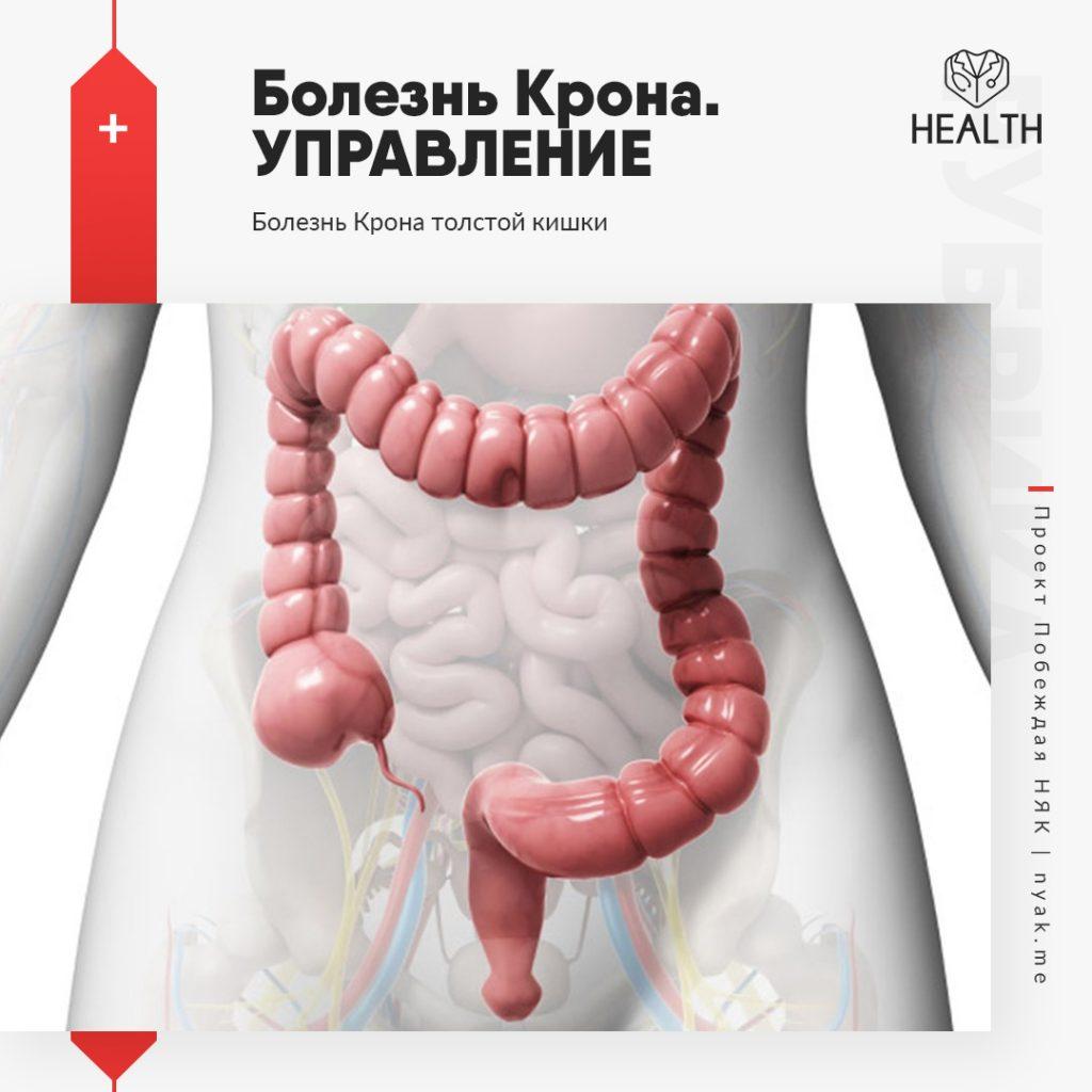 Болезнь Крона. Управление. Болезнь Крона толстой кишки мкб 10