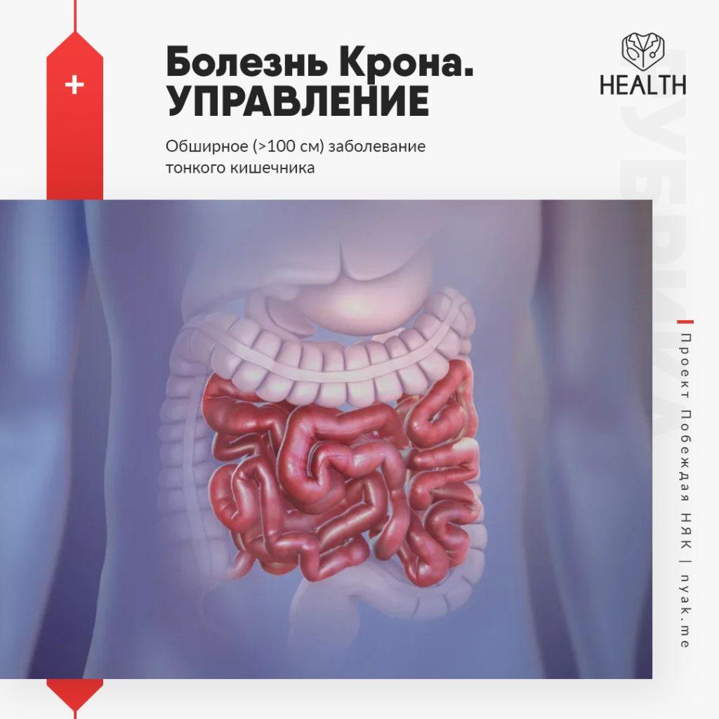 Болезнь Крона. Управление. Обширное заболевание тонкого кишечника при болезни Крона