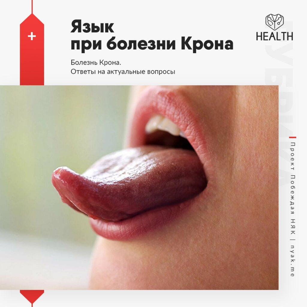 Язык при болезни Крона