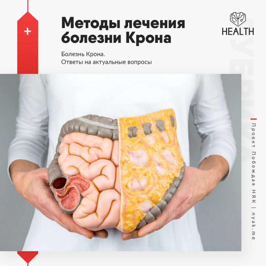 Методы лечения болезни Крона