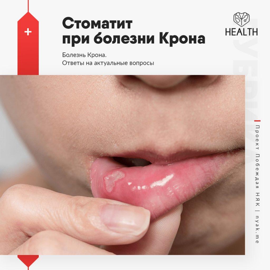 Стоматит при болезни Крона