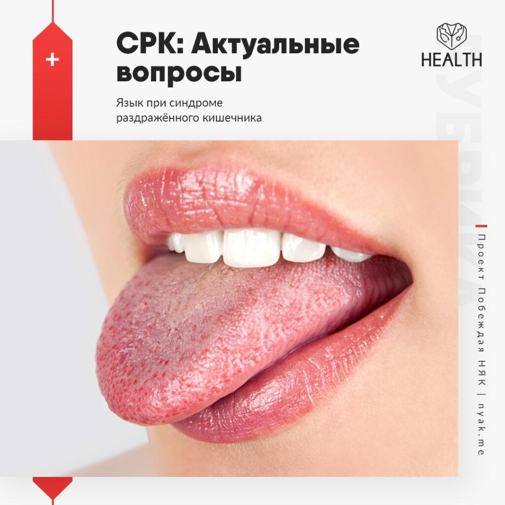 Язык при синдроме раздражённого кишечника
