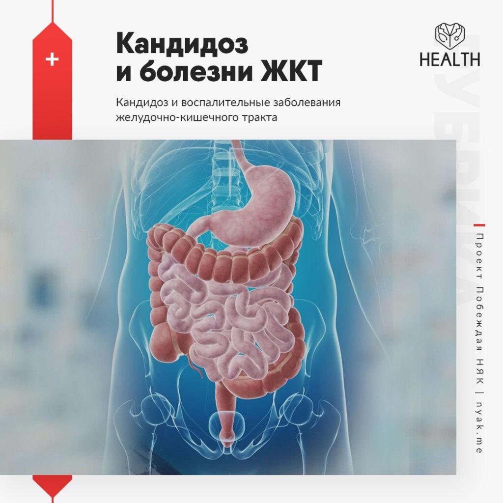 Кандидоз и воспалительные заболевания желудочно-кишечного тракта