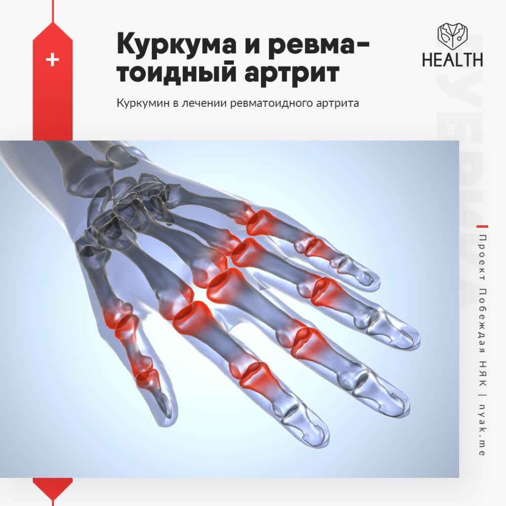 Куркума и ревматоидный артрит