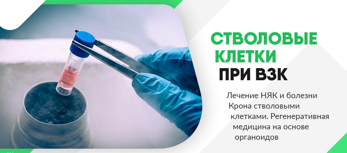 Лечение ВЗК стволовыми клетками. Регенеративная медицина на основе органоидов при воспалительных заболеваниях кишечника