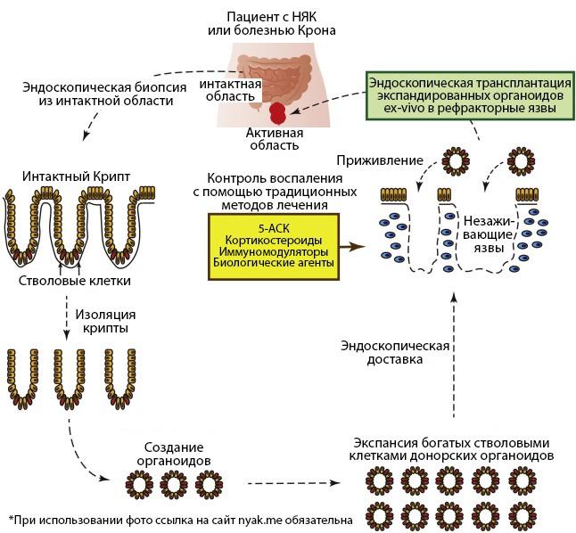 Предложенная стратегия эндоскопической трансплантации кишечных стволовых клеток для её применения у больных ВЗК