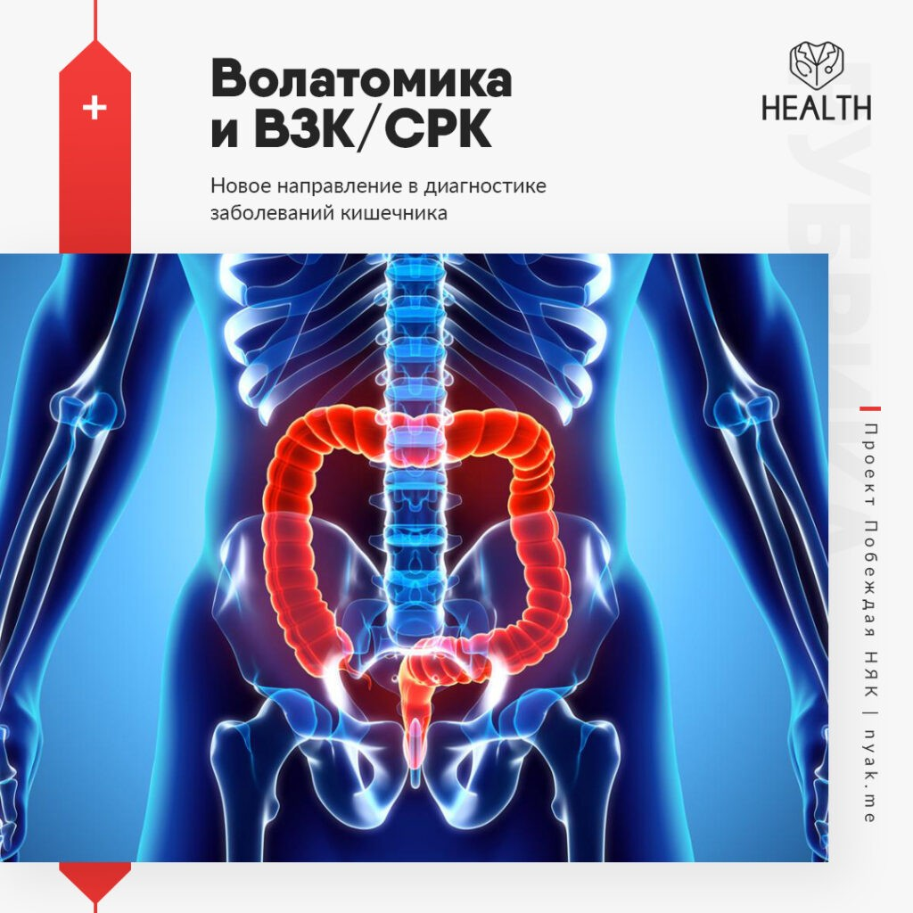 Волатомика и ВЗК, СРК. Новое направление в диагностике заболеваний кишечника