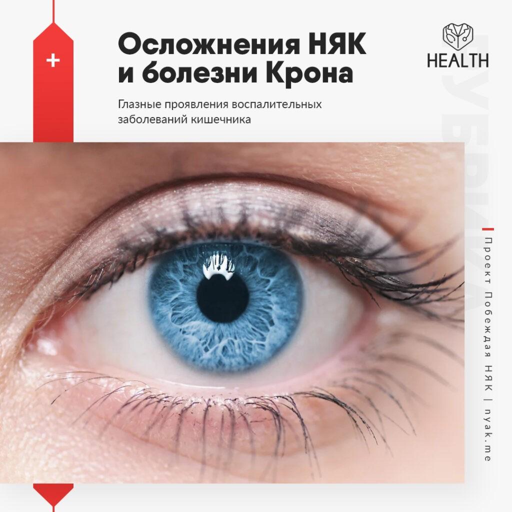 Глазные проявления воспалительных заболеваний кишечника