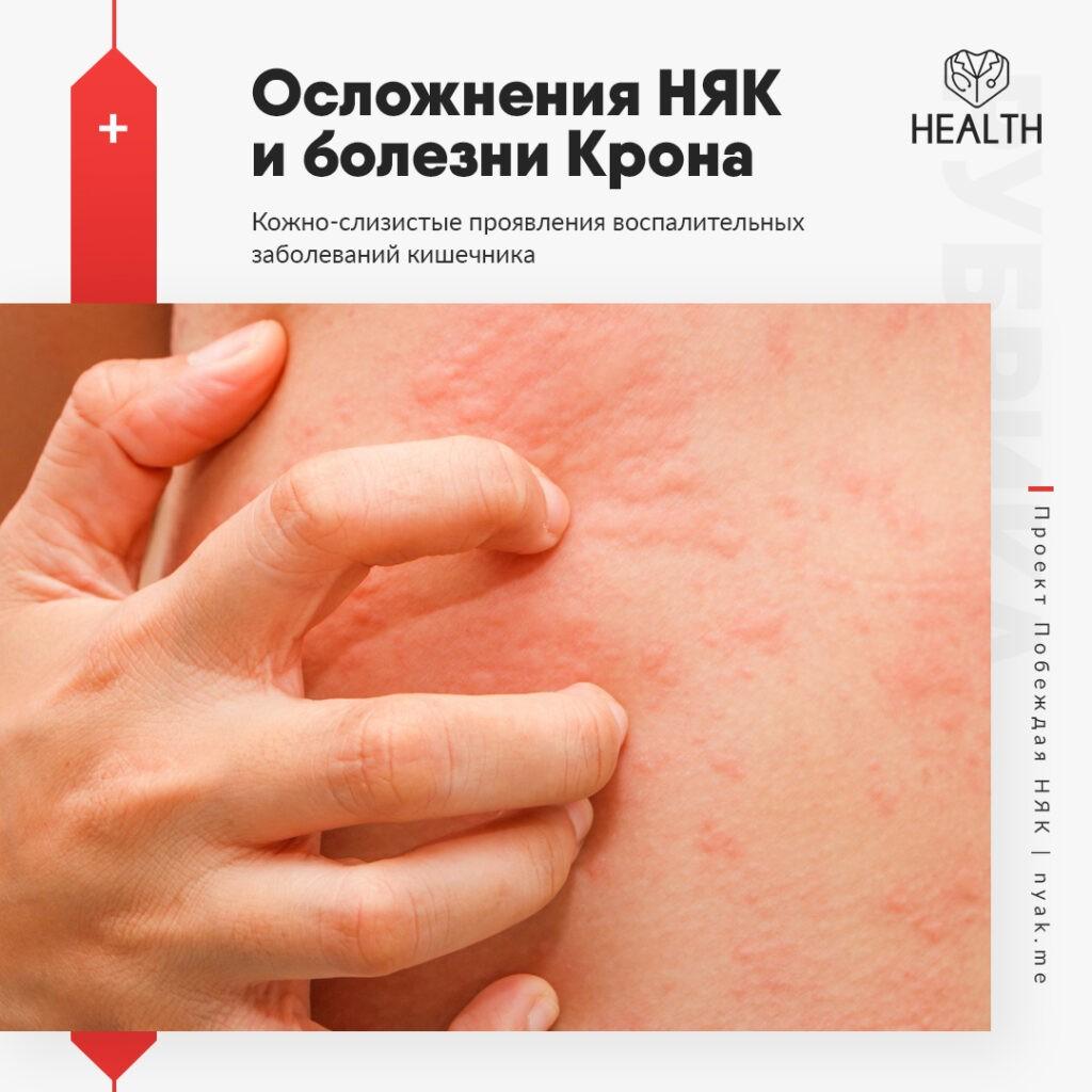 Кожно-слизистые проявления воспалительных заболеваний кишечника