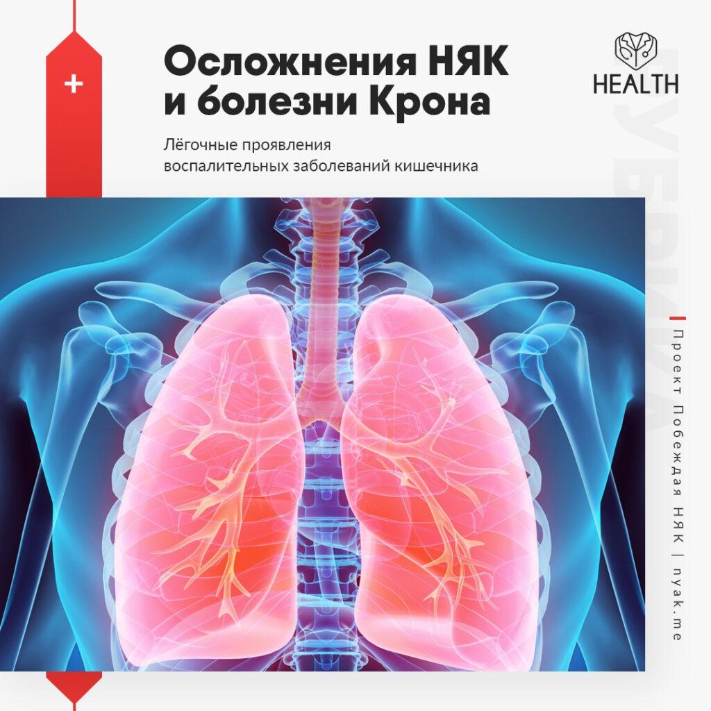Лёгочные проявления воспалительных заболеваний кишечника