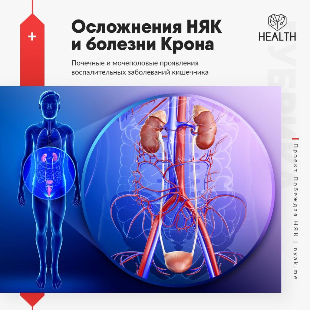 Почечные и мочеполовые проявления воспалительных заболеваний кишечника
