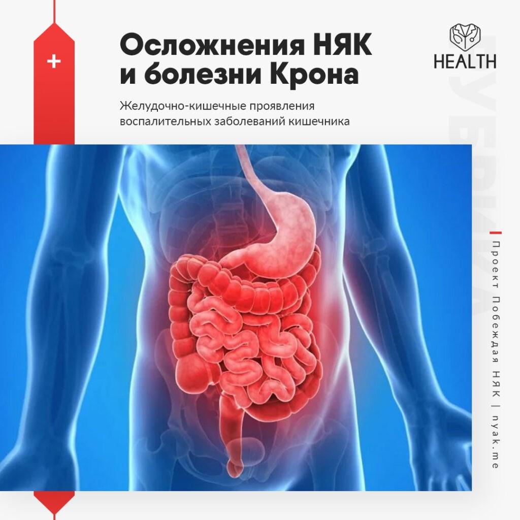 Желудочно-кишечные проявления воспалительных заболеваний кишечника
